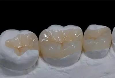 牙嵌体图片