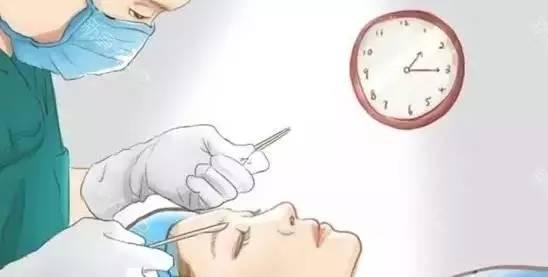 双眼皮手术有几种?