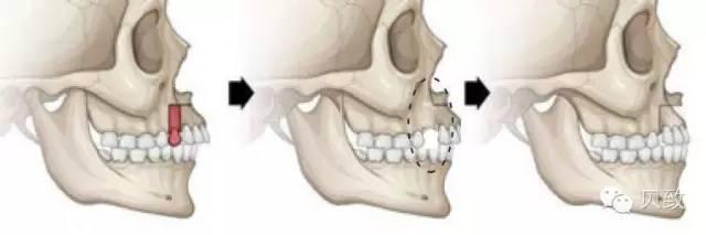 牙齿矫正的良好年龄和价格是多少?