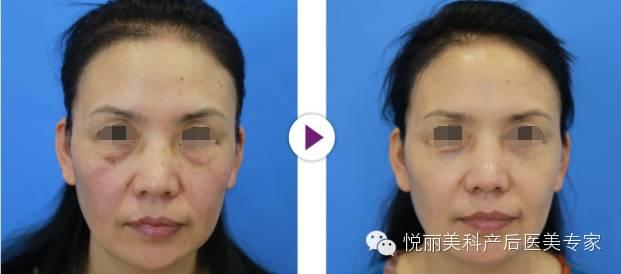 做面部的抗衰老的作用好吗?