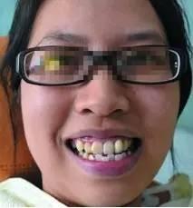矫正牙齿脸型会变吗?