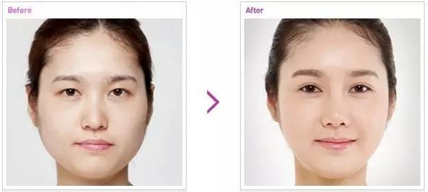 双眼皮术后要多久拆线呢?
