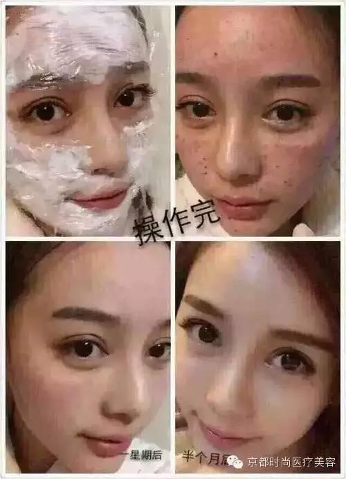 在注射水光针术后多久可以洗脸?