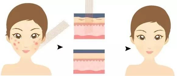 假体隆鼻的效果是长期的吗?