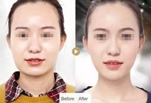 自体脂肪全脸填充多久消肿,多久能恢复自然呢?