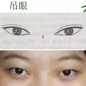 肿泡眼适合做哪种双眼皮,是长期保持的吗?