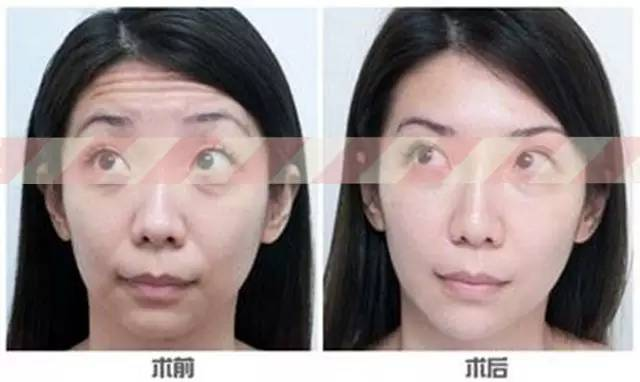 瘦体蛋白瘦脸贵不贵,效果明显吗?