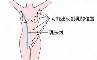 """副乳除了可以发生在""""乳线""""位置上外"""