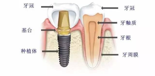 成年人能种植牙齿吗?