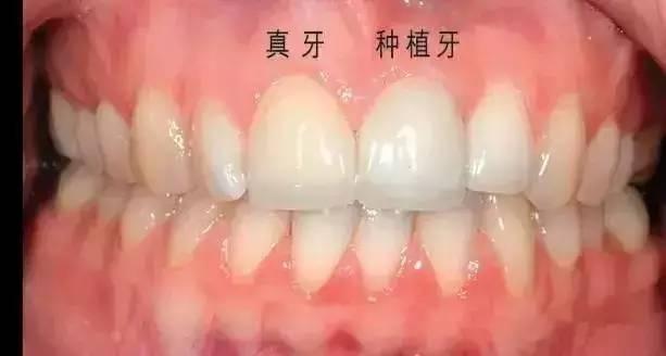 种植牙 危害 种植牙好不好?为什么种植牙好?