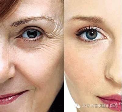 自体血清抗衰老的效果怎么样?