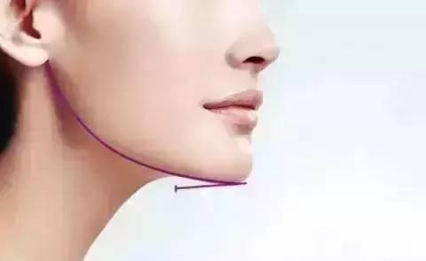 自体脂肪垫下巴的效果怎么样?