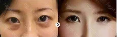 3、专业操作:北京俯大整形医院综合去眼袋技术由专业的去眼袋专家诊治