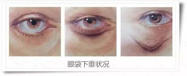 韩国去眼袋手术要多少钱?眼袋、皱纹、下垂