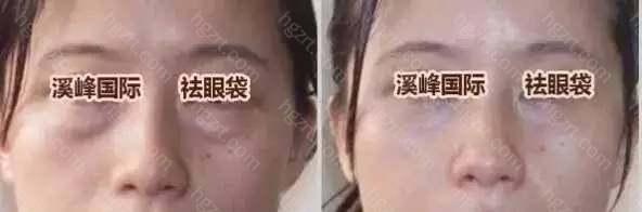 2、综合处理:做去眼袋技术对眼袋、皮肤、脂肪、眶隔微超处理的同时进行脂肪均衡