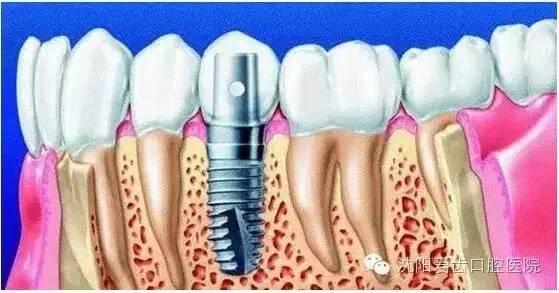 种植牙现在多少钱一颗?