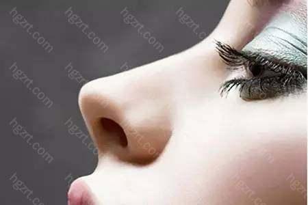 玻尿酸注射隆鼻能维持多久时间?北京金燕子玻尿酸隆鼻通常是把一剂针的剂量分散来打