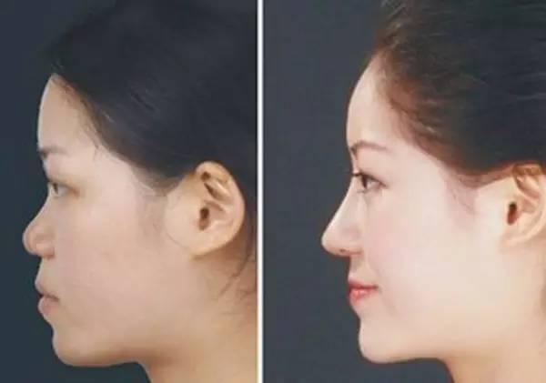 做一个脸部微整形需要多少钱?
