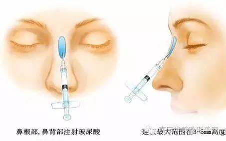 假体隆鼻的材料都有哪些?