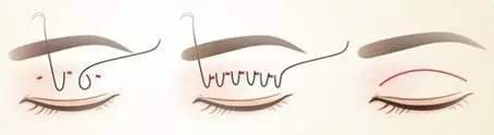 割双眼皮的风险有哪些?