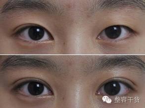 北京刘风卓双眼皮怎么样?