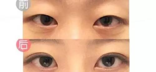 割双眼皮的风险有哪些?做哪一种双眼皮比较好?