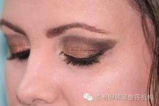 黑眼圈怎么消除?