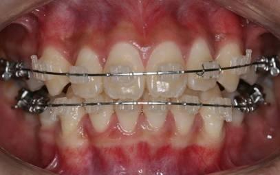 做牙齿矫正手术要多少钱?