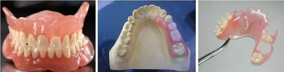 种种植牙多少钱一颗?