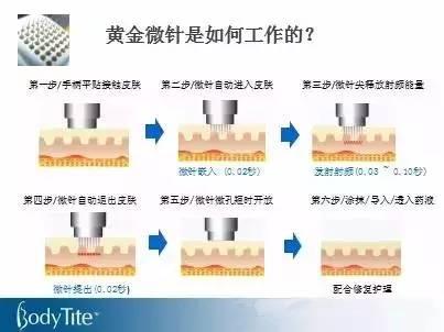 什么是4D黄金微针射频?