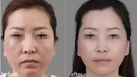面部线雕提升几天能好?