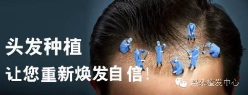对植发手术有疑问?