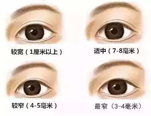 割双眼皮有什么危险吗?