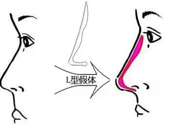 韩国隆鼻一般用什么材料?