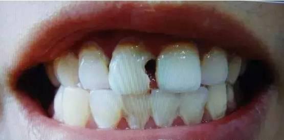 如何正确美白牙齿?
