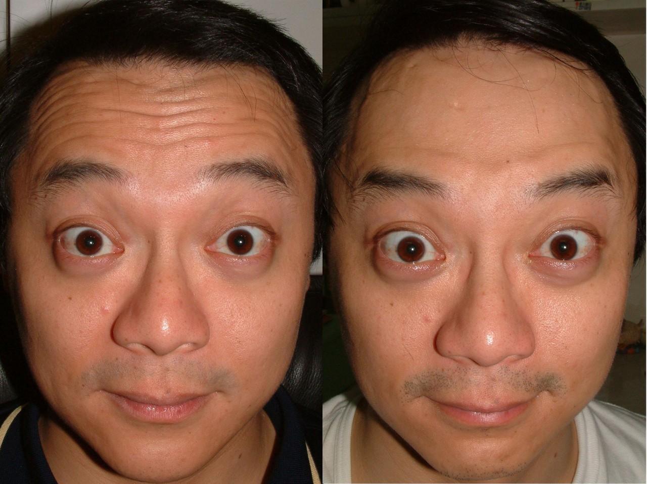 开内眼角会留疤吗,能不能和双眼皮一起做呢?