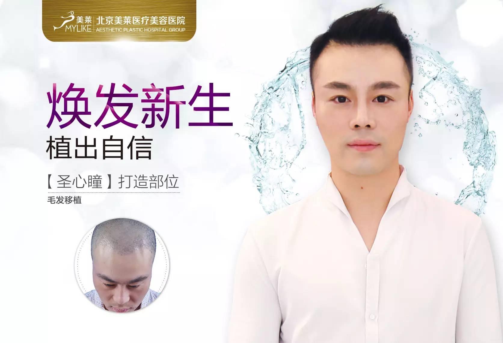 毛发移植多久能见效呢,现在人脱发太普遍了。