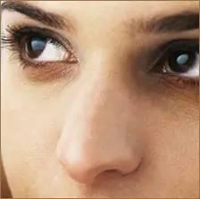 隆鼻术后的注意事项有哪些?