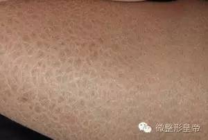 打完玻尿酸多久能洗脸?