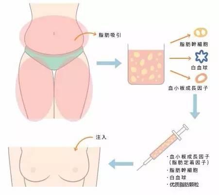 自体脂肪丰胸抽取哪个部位的脂肪比较好?