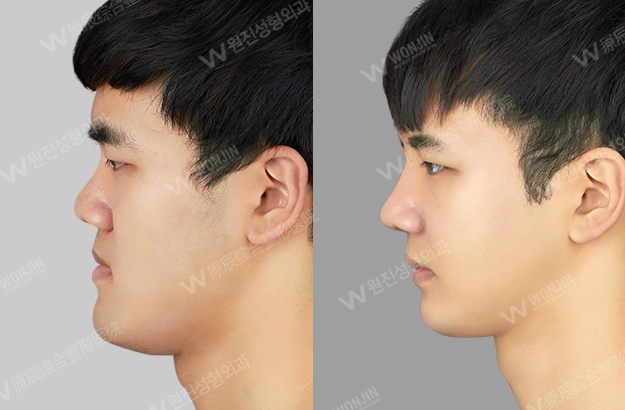 下颌角磨骨后脸会松弛变老吗?