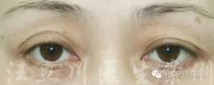 开内眼角需要多久才能恢复?