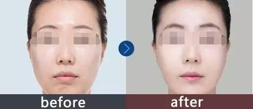 彩光嫩肤多久做一次?