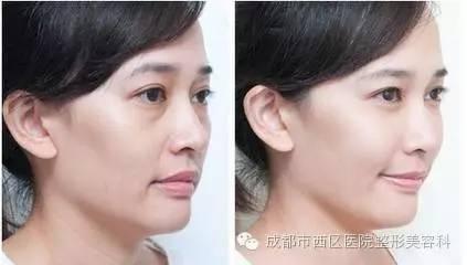 玻尿酸隆鼻打几次可以长期?