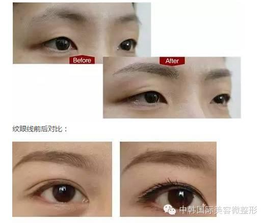 韩式半长期睫毛种植可以保持多久?