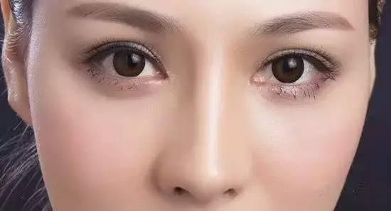 韩式双眼皮效果怎么样啊?