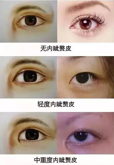 肿泡眼能不能做双眼皮吗?
