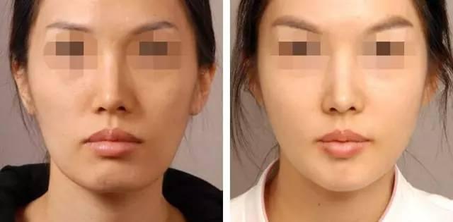 打botox瘦脸针费用一般是多少钱啊?