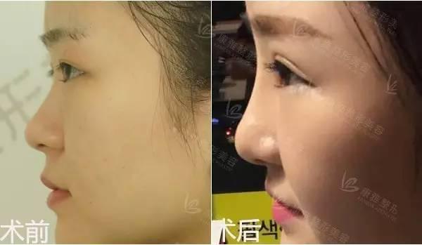 韩式隆鼻方法都有哪些,多久后可以恢复?