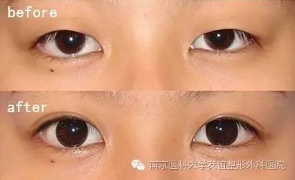 内眦赘皮矫正就是开眼角吗?